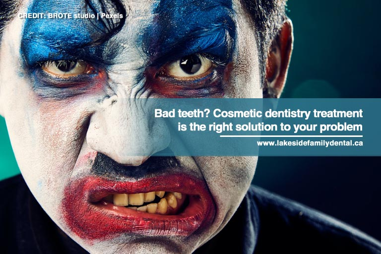 Bad teeth? Cosmetic dentistry treatment is the right solution to your problem