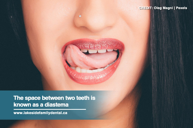The space between two teeth is known as a diastema