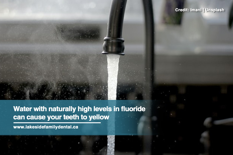 Water with naturally high levels in fluoride can cause your teeth to yellow
