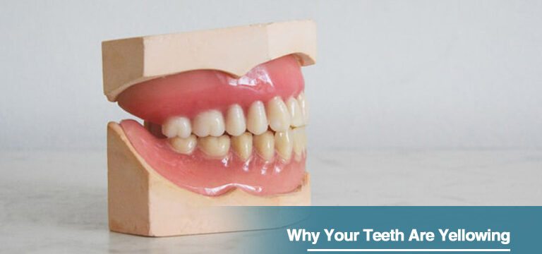 Why Your Teeth Are Yellowing