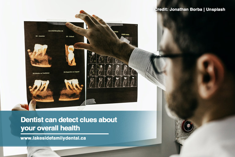 Dentist can detect clues about your overall health