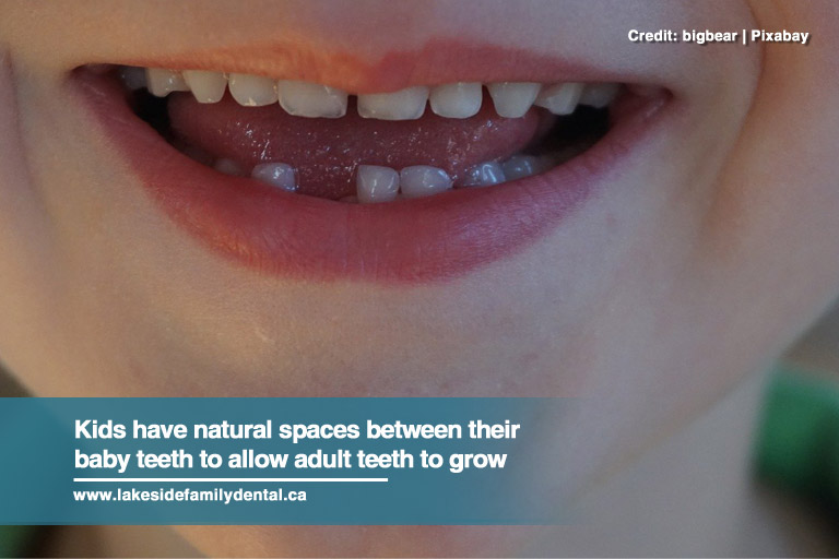 Kids have natural spaces between their baby teeth to allow adult teeth to grow