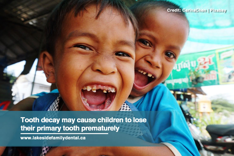 Tooth decay may cause children to lose their primary tooth prematurely