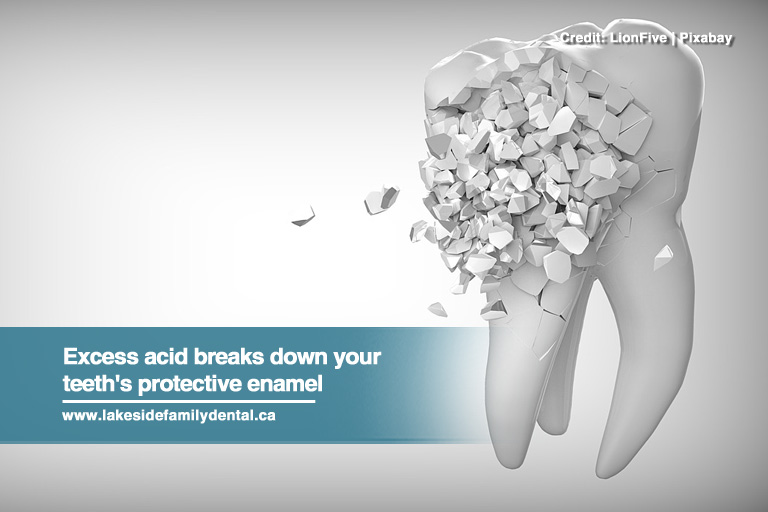 Excess acid breaks down your teeth's protective enamel