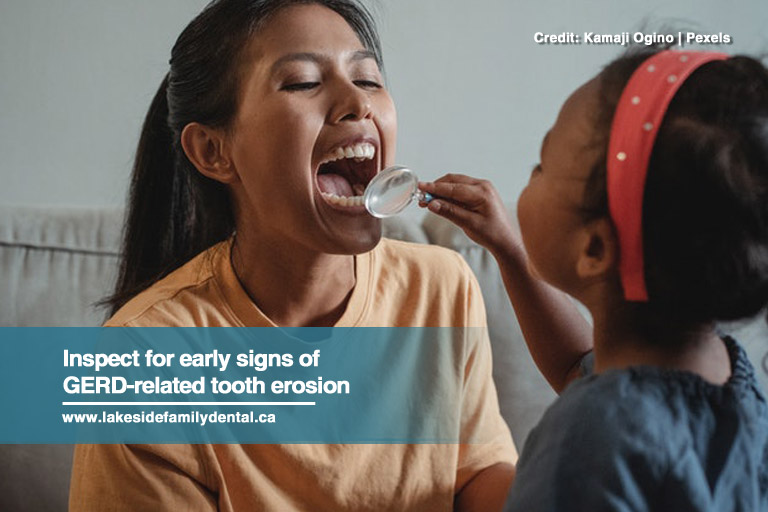 Inspect for early signs of GERD-related tooth erosion
