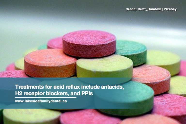 Treatments for acid reflux include antacids, H2 receptor blockers, and PPIs