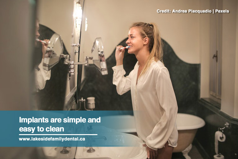 Implants are simple and easy to clean
