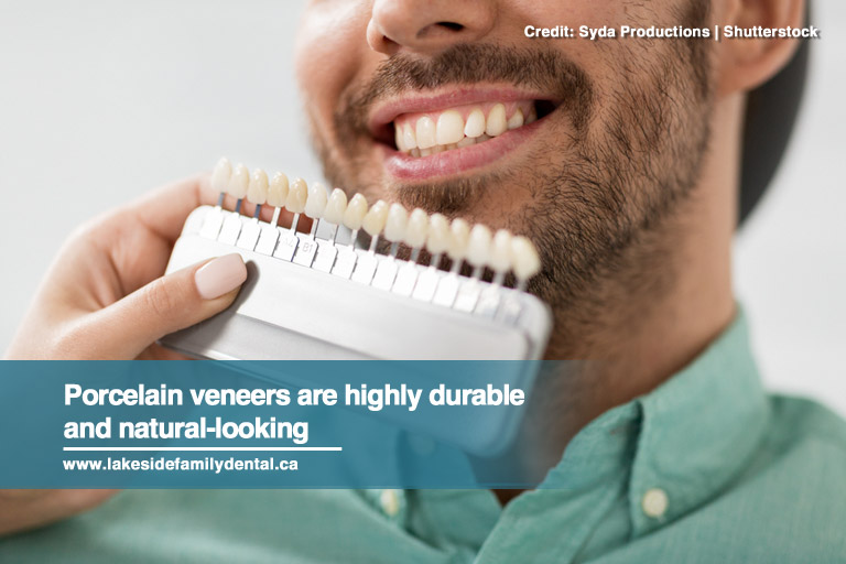 Porcelain veneers are highly durable and natural-looking