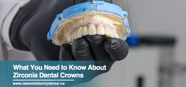 What You Need to Know About Zirconia Dental Crowns