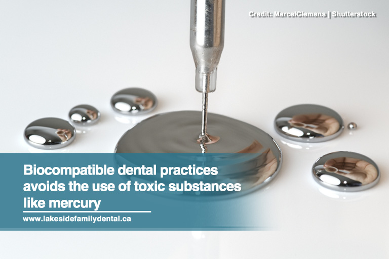 Biocompatible dental practices avoids the use of toxic substances like mercury